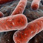 Infección Tuberculosa meningea